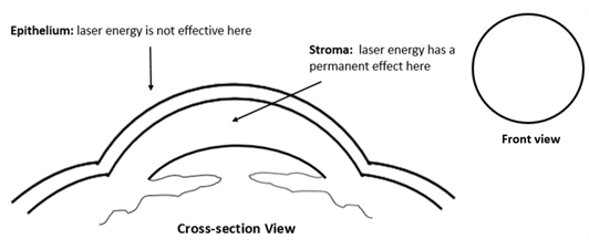 Full cross section of the cornea. The epithelium is the outer layer of skin and the stroma is the layer underneath where the laser actually does the work.