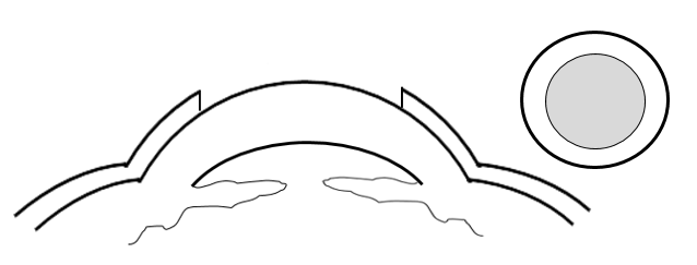 Cross section view of the cornea, with the epithelium removed with a circular brush to indicate the first step in PRK surgery.