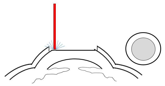 Cross section of the cornea indicating the second step of PRK is that the laser removes tissue to reshape the eye.