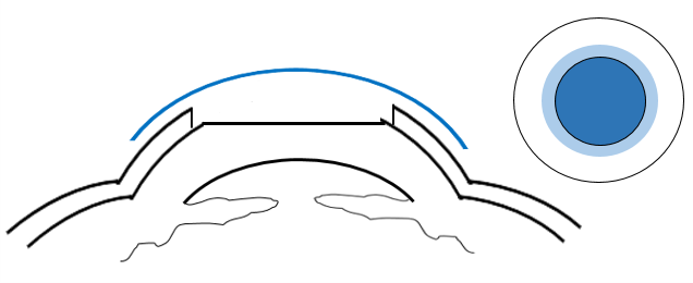 Cross section of the cornea indicating PRK post - operation. A bandage contact lens is placed on the eye.