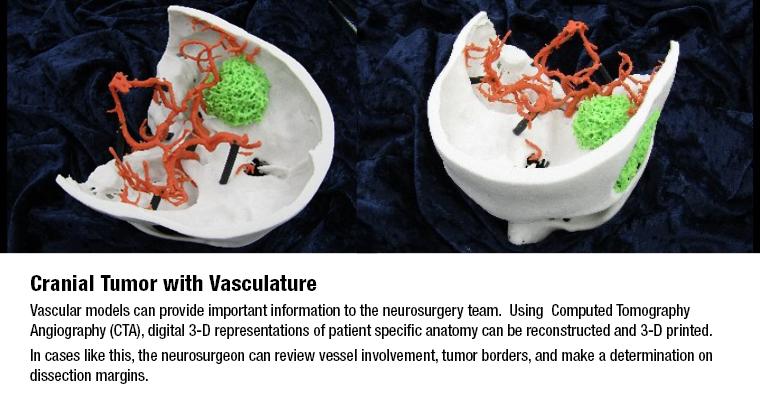 3D MAC Cranial Tumor