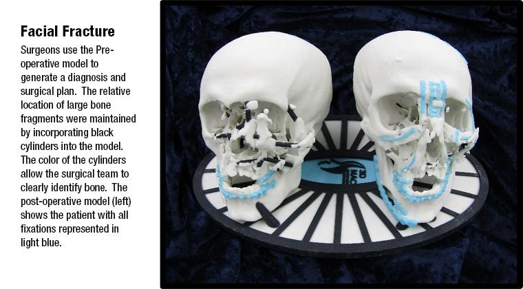 3D MAC Facial Fracture
